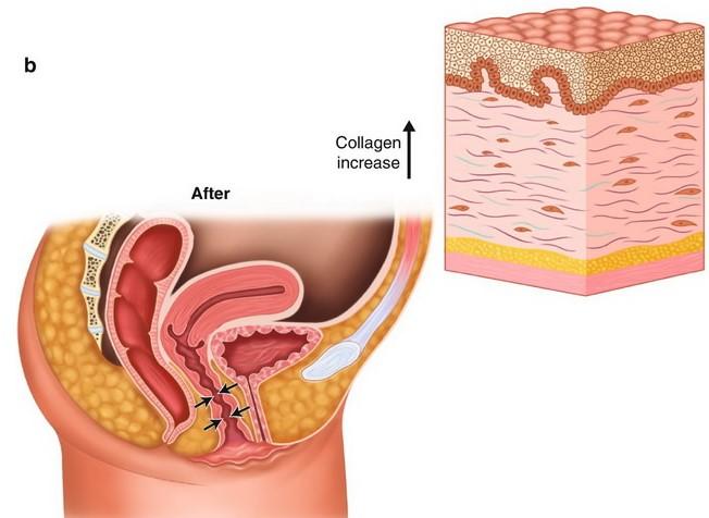 vagina-tightening-rejuvenation